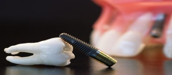 دندانپزشک علل شکست ایمپلنت را شرح میدهد